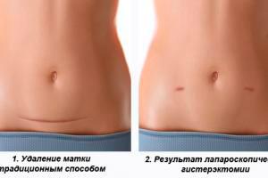 Проведение лапароскопической гистерэктомии в клинике АВИЦЕННА МЕД, Киев