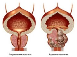 Diagnosis and treatment of prostate adenoma - clinic AVICENNA MED, Kiev