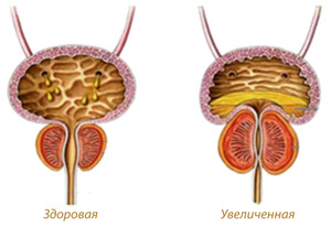 Treatment of prostate adenoma - AVICENNA MED, Kiev
