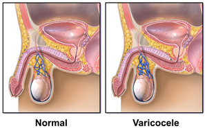 Diagnosis and treatment of varicocele - AVICENNA MED, Kiev
