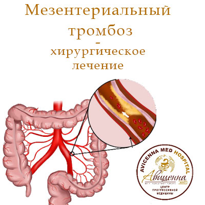 Хирургия мезентериального тромбоза - АВИЦЕННА МЕД, Киев